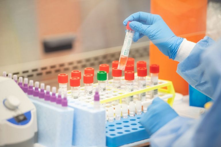 Κοροναϊός: Το πρώτο ρωσικό τεστ ταχείας διάγνωσης θα βγει σύντομα στην αγορά   to10.gr