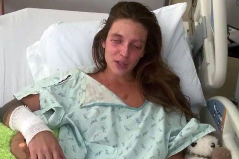 Σοκ: 24χρονη προσπάθησε να φτιάξει καλλυντικά και τυφλώθηκε | to10.gr